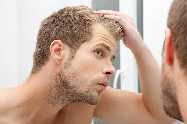 cute balding guy checking his hairline